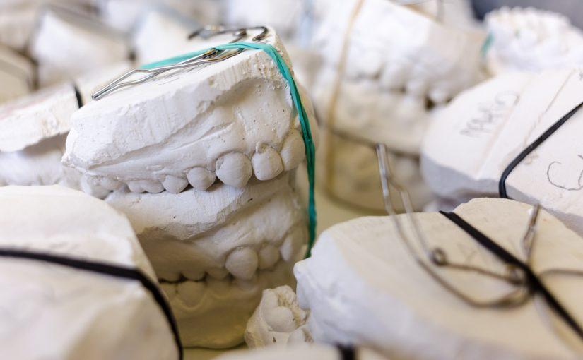 Zła droga żywienia się to większe deficyty w zębach oraz także ich brak